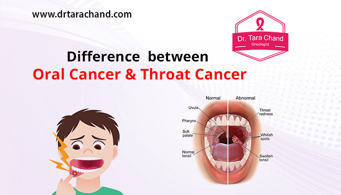 Difference Between Oral Cancer & Throat Cancer